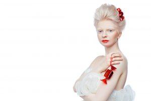 International Albinism Awareness Day